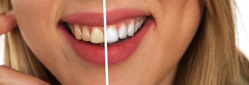 歯 黄ばみ